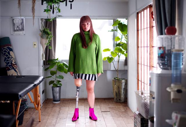 日本假肢女孩成为全球知名模特